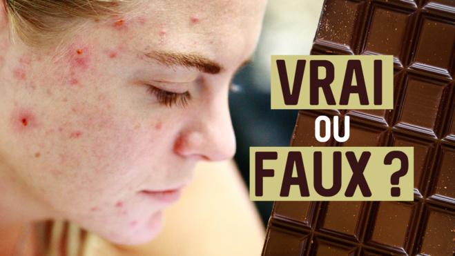 chocolat & acné©