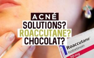 LES SOLUTIONS contre l'ACNÉ : Chocolat ? Roaccutane ? On vous dit tout !